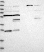 NBP1-82835 - Centrobin