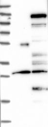 NBP1-82836 - Centrobin