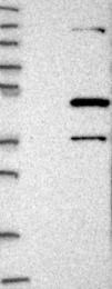 NBP1-82837 - Centrobin