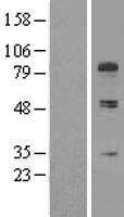 NBL1-09349 - Collagen type XIII alpha 1 chain Lysate