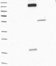 NBP1-86877 - Collagen type XIV alpha 1 chain