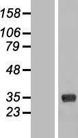 NBL1-09361 - COLEC11 Lysate