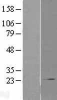 NBL1-09365 - COMMD1 Lysate