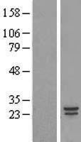 NBL1-09369 - COMMD5 Lysate