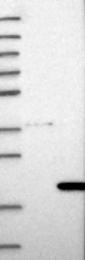 NBP1-82178 - COMMD8
