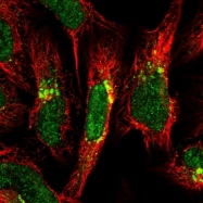 NBP1-85514 - Gamma-coat protein