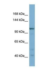 NBP1-57636 - Coatomer subunit gamma-2
