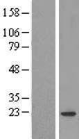 NBL1-09387 - COPZ1 Lysate