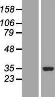 NBL1-09390 - COQ3 Lysate