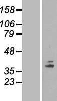 NBL1-09391 - COQ5 Lysate