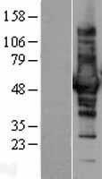 NBL1-09396 - CORO1B Lysate