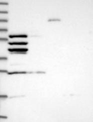 NBP1-81582 - Coronin-2A
