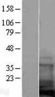 NBL1-09402 - COTL1 Lysate