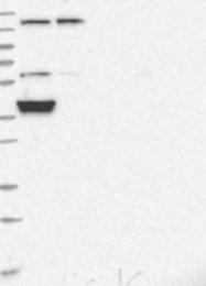 NBP1-85880 - COX15