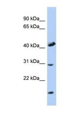 NBP1-59616 - COX18