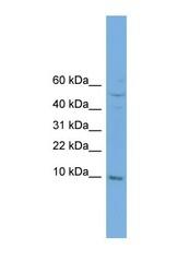 NBP1-57028 - Complex IV subunit VIIb
