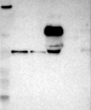 NBP1-90873 - Carboxypeptidase N subunit 2