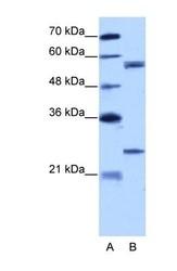 NBP1-57418 - Copine-1