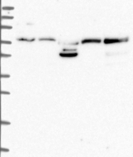NBP1-85827 - Copine-7