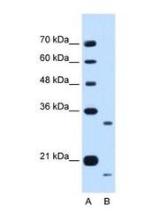 NBP1-70758 - CCPG1
