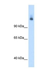NBP1-54774 - CPS1