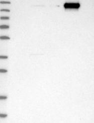 NBP1-86019 - CPS1