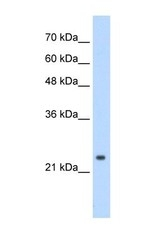 NBP1-57114 - CPSF4