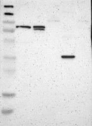 NBP1-85473 - CPT1A / CPT1-L