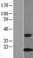 NBL1-09458 - CRABP2 Lysate