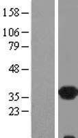 NBL1-15383 - CRALBP Lysate