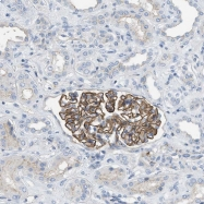 NBP1-81185 - Crumbs homolog 3