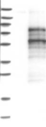 NBP1-82503 - CREB3L1 / OASIS