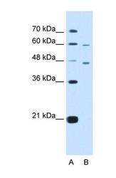 NBP1-59928 - CRELD1