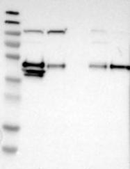 NBP1-81229 - CRELD2