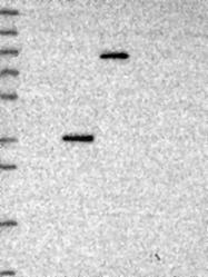 NBP1-91811 - CRHBP