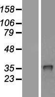 NBL1-09476 - CRHBP Lysate
