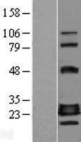 NBL1-10936 - CRIF1 Lysate