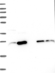 NBP1-84379 - Cysteine-rich protein 2