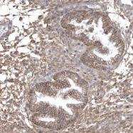 NBP1-88762 - Cysteine-rich protein 3