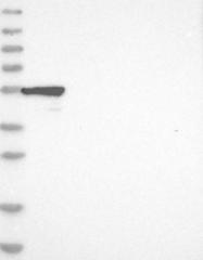 NBP1-84413 - CRISP10