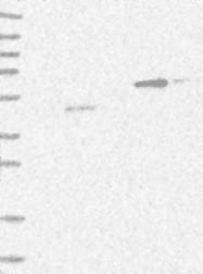 NBP1-85143 - CRISP11