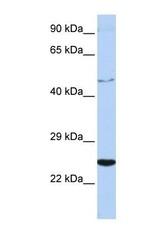 NBP1-58328 - CRLF1