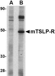 NBP1-76398 - CRLF2