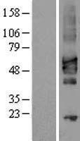 NBL1-09485 - CRLF2 Lysate