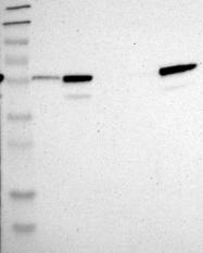 NBP1-84382 - CRLF3