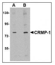 NBP1-50466 - CRMP1 / DPYSL1