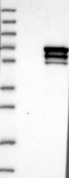 NBP1-84985 - CRMP1 / DPYSL1