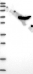 NBP1-85503 - CROT