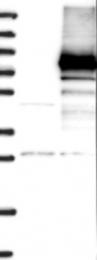 NBP1-86273 - Cryptochrome-2