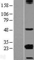 NBL1-09498 - CRYBA2 Lysate